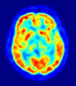 Sleep Loss and Brain Damage